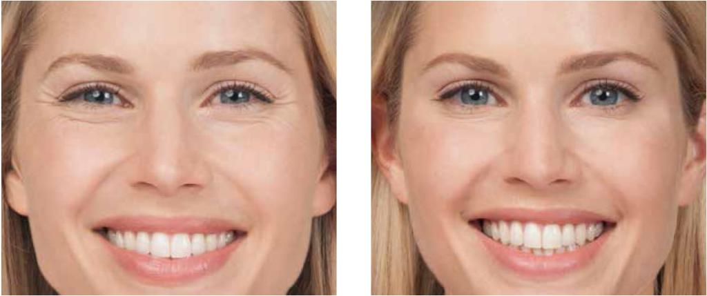 Botox, How Long Does Botox Take to Work?